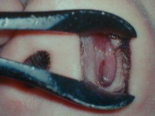 中 かさぶた の 鼻